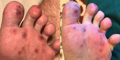 足裏症状の詳細 歩行困難な状態 膠原病